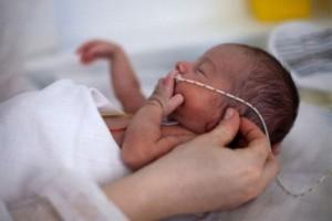 Cách xử trí Rối loạn thân nhiệt ở bé sinh non