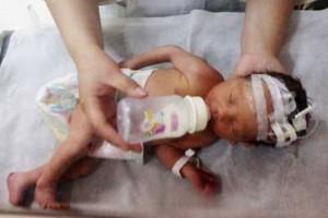 Các biến chứng của bé sinh non khi mắc các bệnh