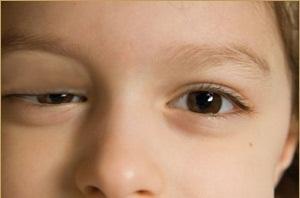 Các triệu chứng của bệnh về mắt