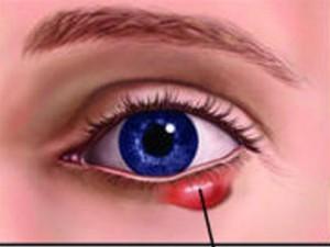 Cá cách điều trị về bệnh mắt