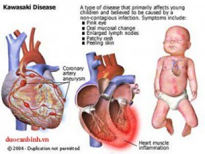 Biểu hiện của bệnh ra saoBiểu hiện lâm sàng của bệnhBệnh Kawasaki điển hình có 3 giai đoạnNguy cơ của trẻ khi đối mặt với KawasakiChăm sóc trẻ bệnh thế nào? Biến chứng tim mạch do bệnh Kawasaki