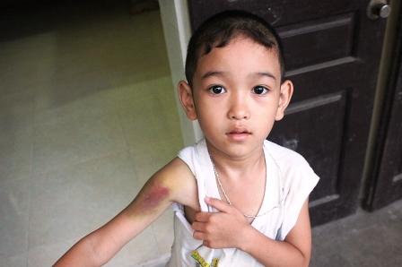Bệnh máu khó đông ở trẻ???
