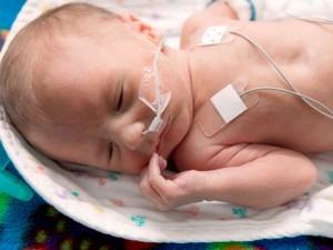 chăm sóc trẻ đẻ non, trẻ đẻ non, em bé sinh non