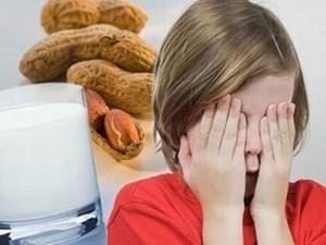 Dị ứng thức ăn ở trẻ nhỏ, trẻ bị dị ứng thức ăn làm thế nào