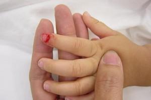trẻ bị dập ngón phải làm sao, trẻ bị dập ngón tay phải làm sao, trẻ bị dập ngón chân phải làm sao