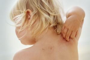 các bệnh về da của trẻ, trẻ viêm da dị ứng