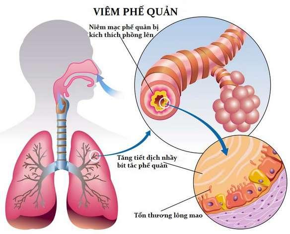 bệnh viêm phế quản ở trẻ nhỏ, viêm phế quản mãn tính ở trẻ em