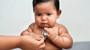 cách giảm béo cho trẻ em, giảm cân cho bé