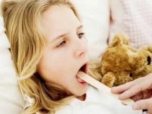 cách chữa viêm amidan, bệnh amidan mãn tính, viêm amidan ở trẻ em