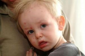 các bệnh về da ở trẻ em, dieu tri benh thuy dau o tre em