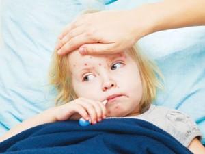 cách điều trị sởi ở trẻ em, phòng bệnh sởi ở trẻ em
