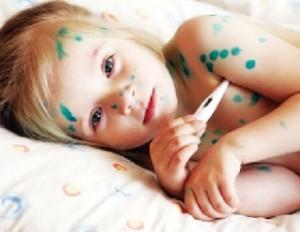 chữa bệnh thủy đậu ở trẻ em