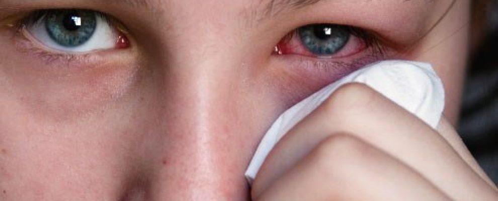 Nguyên tắc chăm con trẻ bị đau mắt đỏ, bệnh đau mắt đỏ, Những thực phẩm kiêng kị cho người bị đau mắt đỏ , Những câu hỏi giúp điều trị đau mắt đỏ hiệu quả, Cẩn trọng với thuốc có corticoid trong điều trị đau mắt đỏ. đau mắt đỏ trẻ em