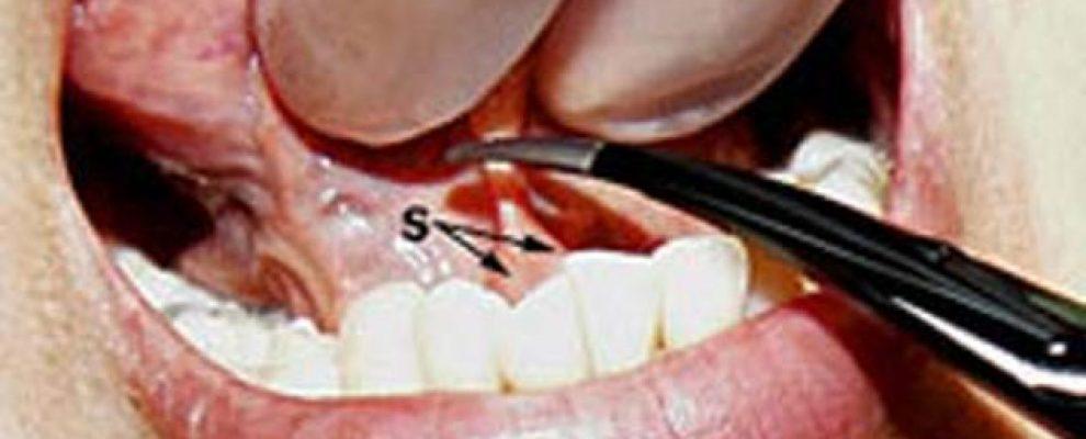 Bé bị dính thắng lưỡi thường được điều trị như nào