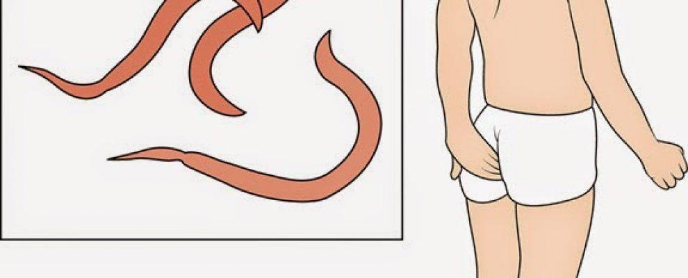 Biểu hiện khi mắc bệnh giun kim, ngứa hậu môn ở trẻ em